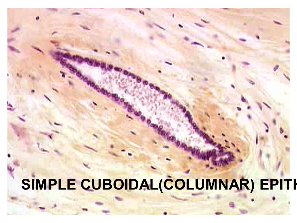 SIMPLE CUBOIDAL(COLUMNAR) EPITHELIUM & 1 CILIA