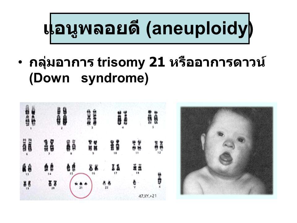 แอนูพลอยดี (aneuploidy)