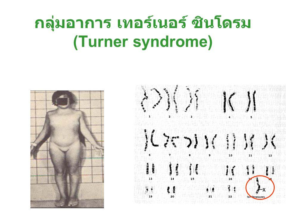 กลุ่มอาการ เทอร์เนอร์ ซินโดรม (Turner syndrome)