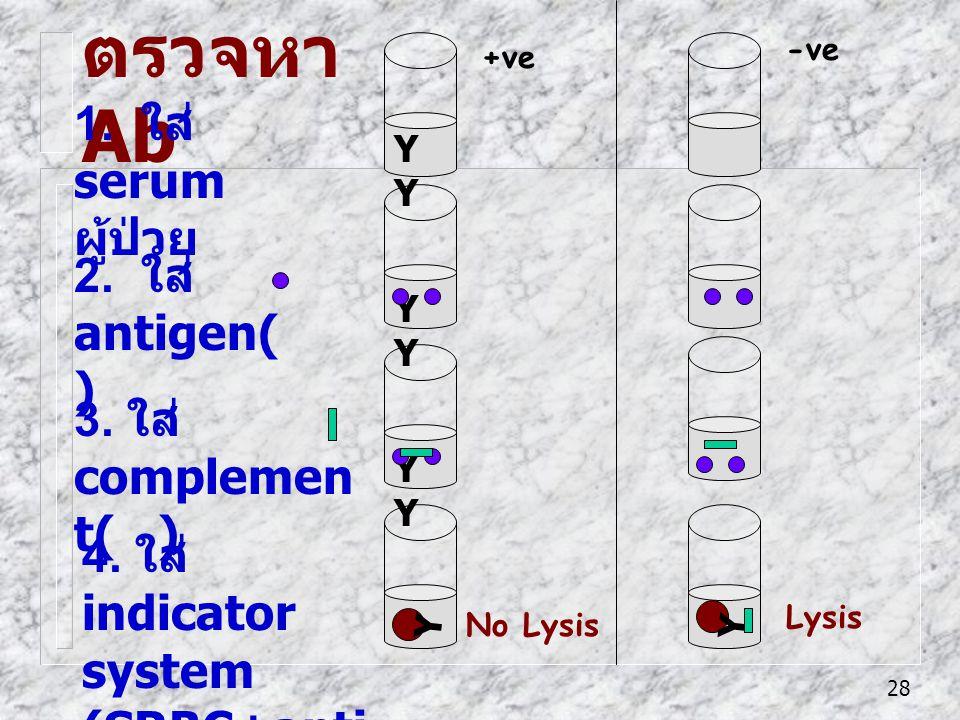 ตรวจหา Ab 1. ใส่ serum ผู้ป่วย 2. ใส่ antigen( ) 3. ใส่ complement( )