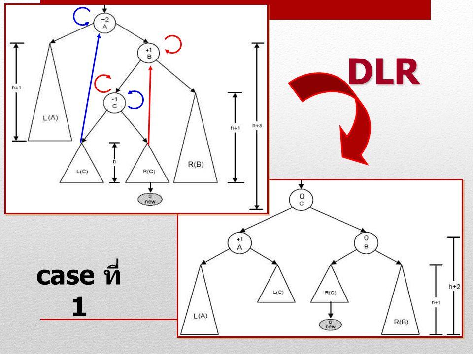 DLR case ที่ 1