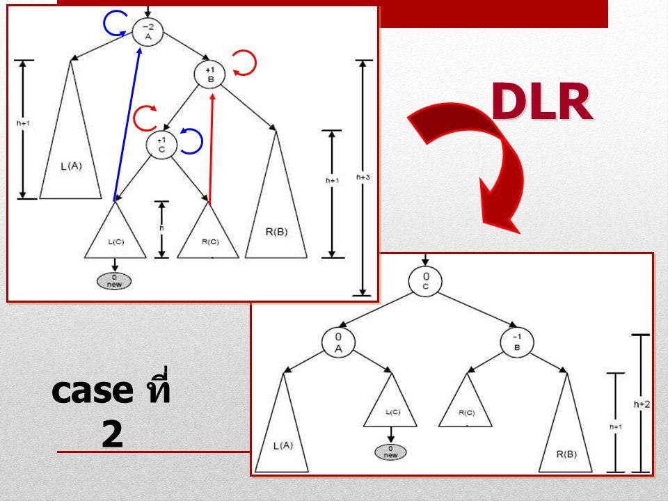 DLR + case ที่ 2