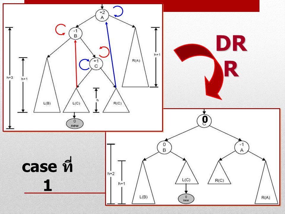 DRR case ที่ 1