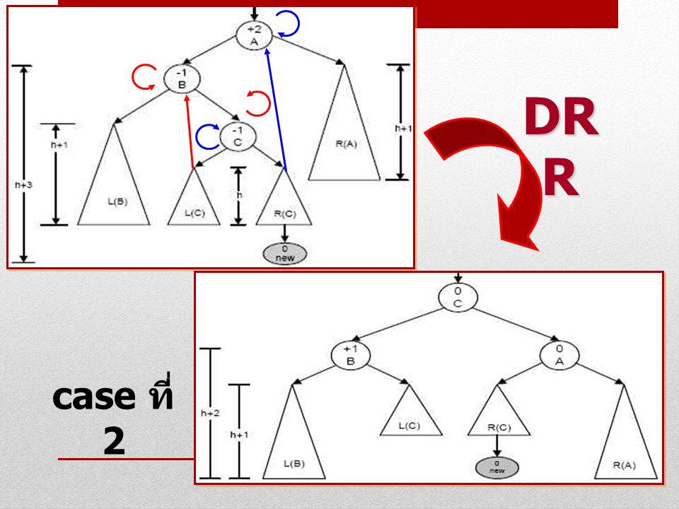 DRR case ที่ 2