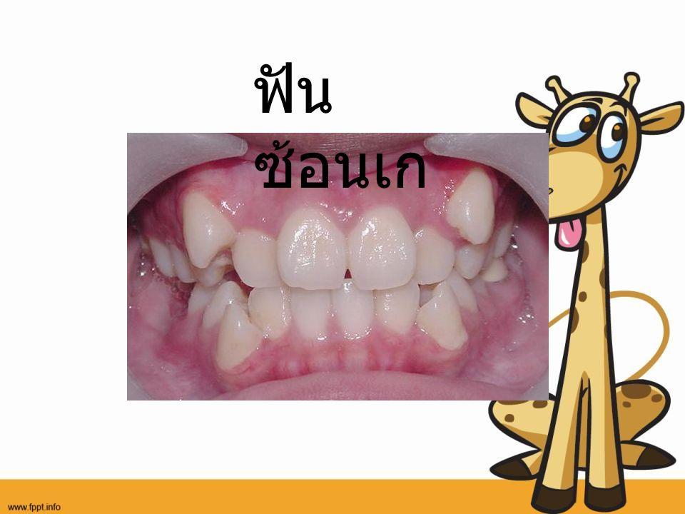 ฟันซ้อนเก