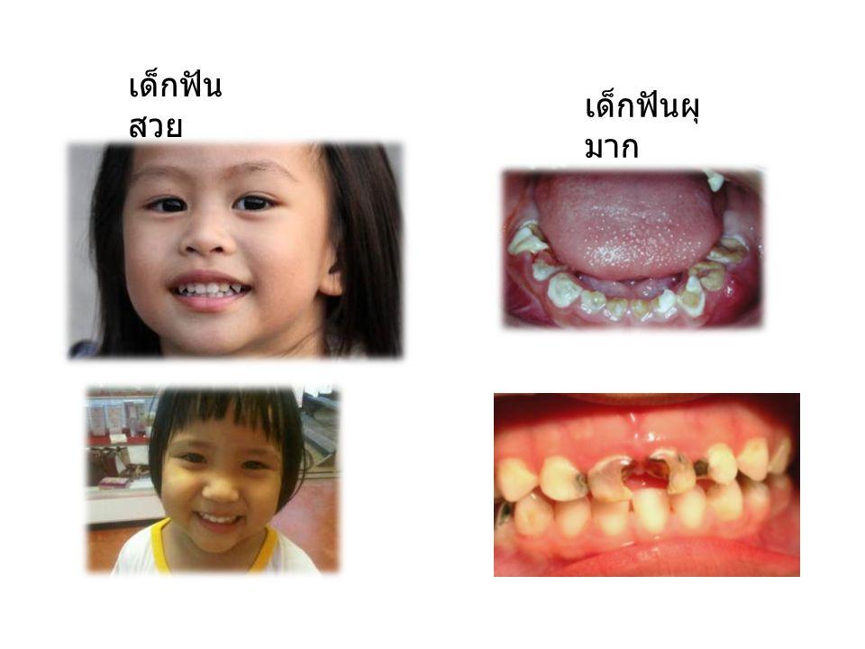 เด็กฟันสวย เด็กฟันผุมาก