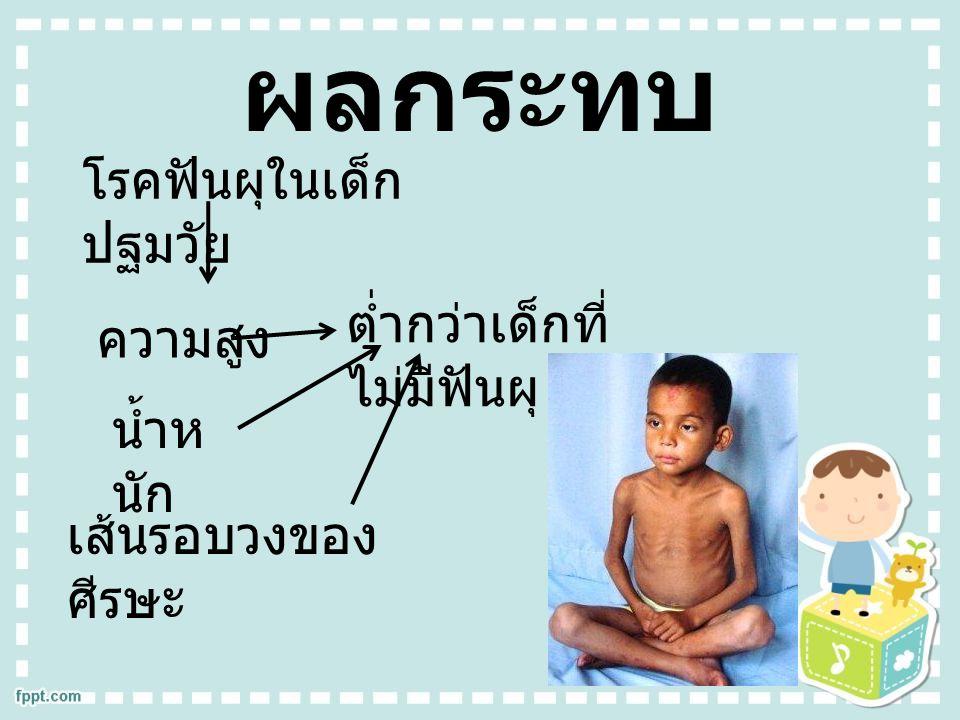ผลกระทบ โรคฟันผุในเด็กปฐมวัย ต่ำกว่าเด็กที่ไม่มีฟันผุ ความสูง น้ำหนัก