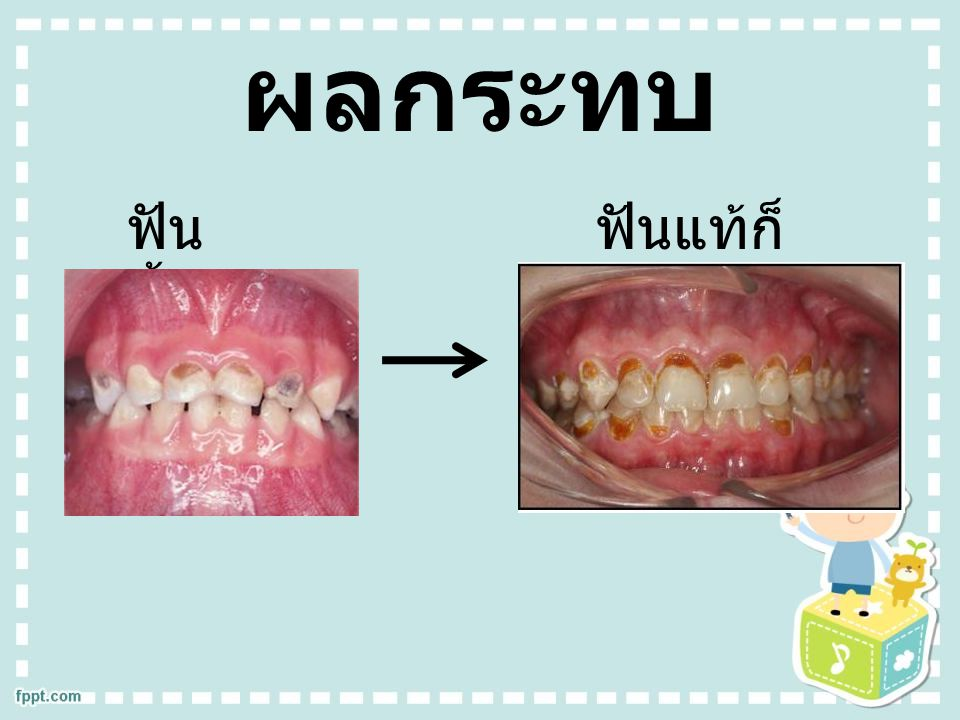 ผลกระทบ ฟันน้ำนมผุ ฟันแท้ก็จะผุ