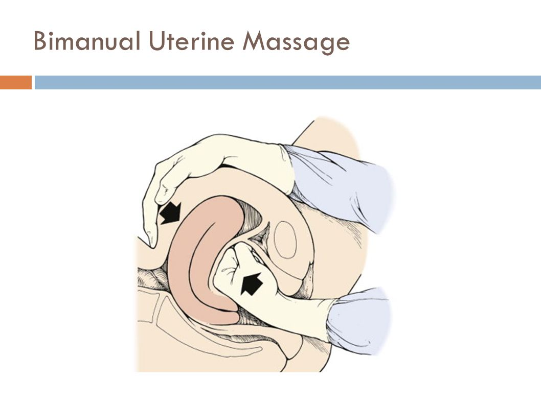 Bimanual Uterine Massage