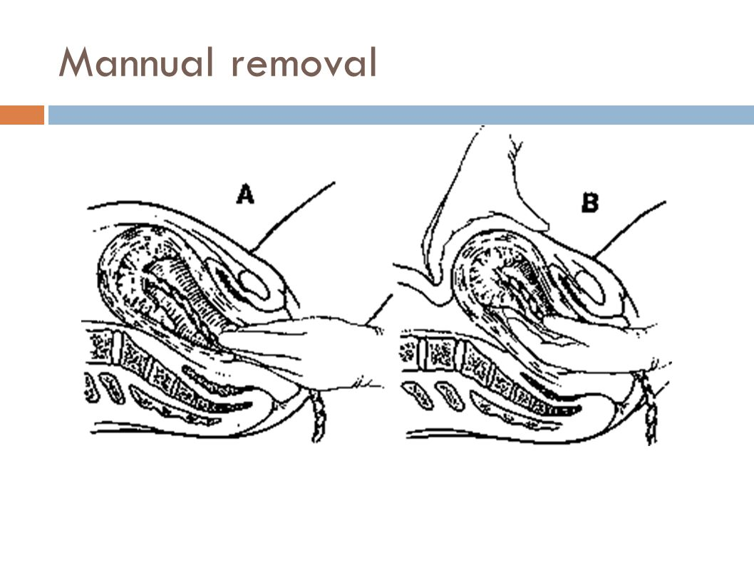 Mannual removal