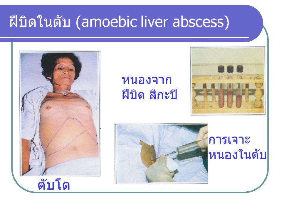 ฝีบิดในตับ (amoebic liver abscess)
