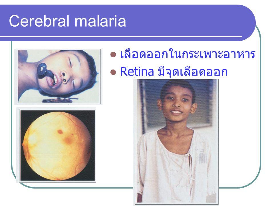 Cerebral malaria เลือดออกในกระเพาะอาหาร Retina มีจุดเลือดออก