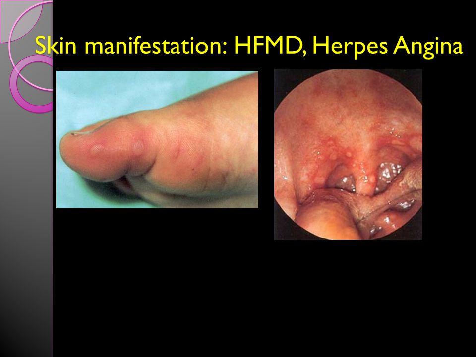 Skin manifestation: HFMD, Herpes Angina