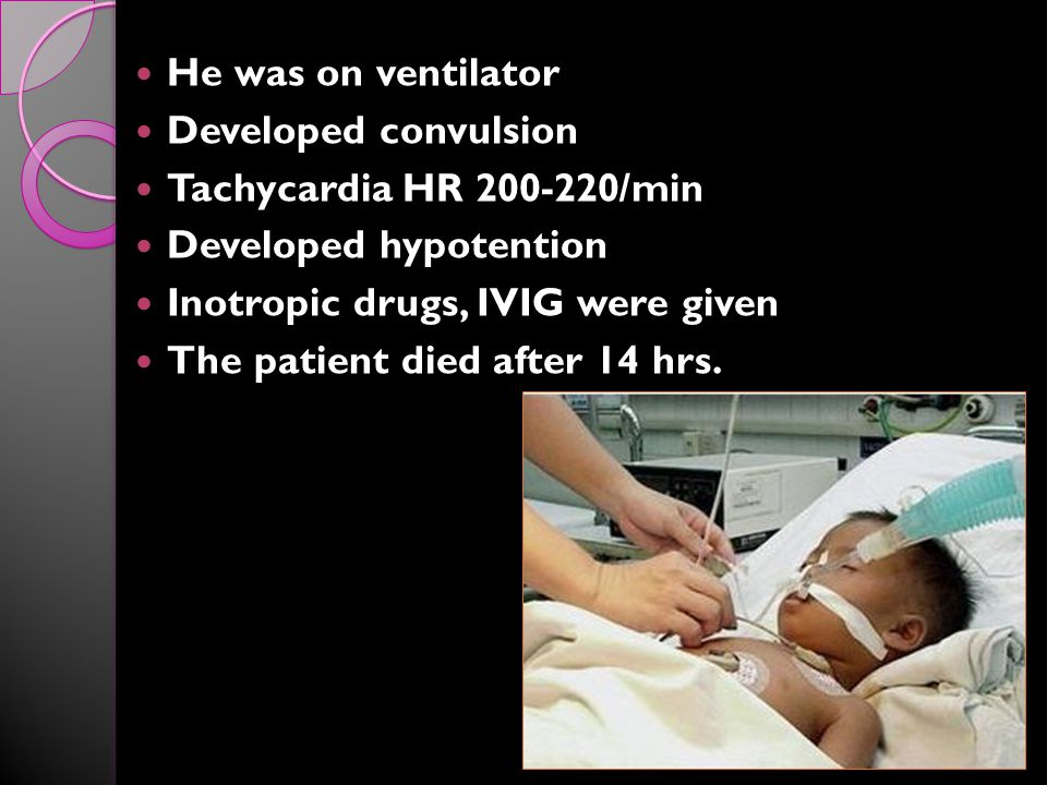He was on ventilator Developed convulsion. Tachycardia HR 200-220/min. Developed hypotention. Inotropic drugs, IVIG were given.