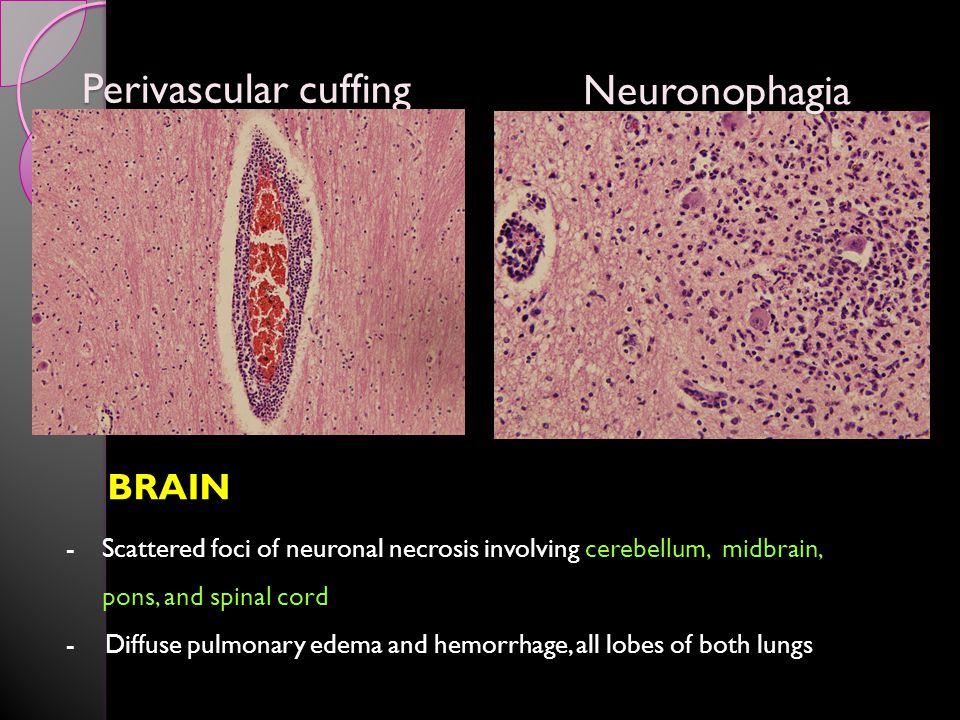 Perivascular cuffing Neuronophagia BRAIN