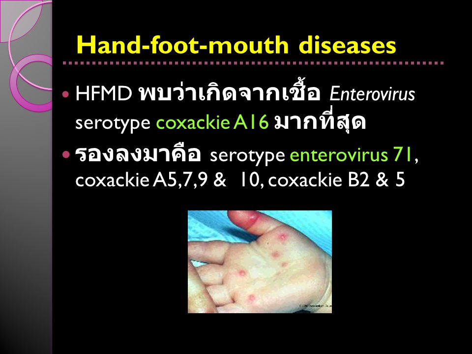 Hand-foot-mouth diseases