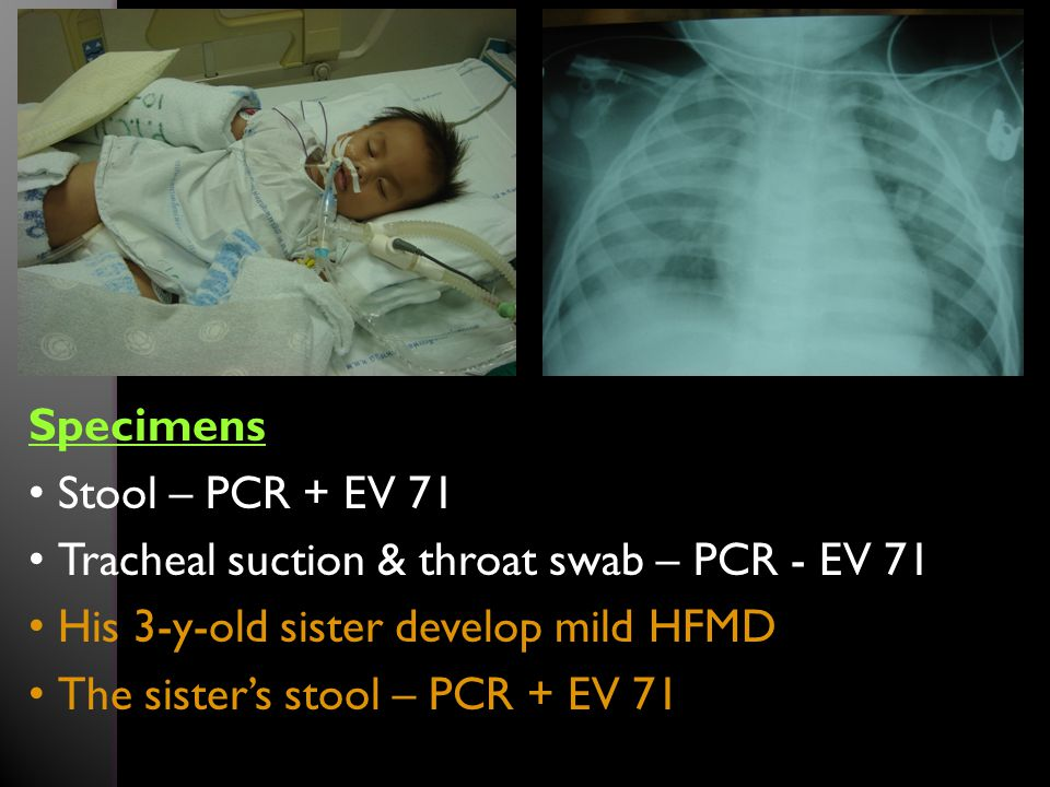 Specimens Stool – PCR + EV 71. Tracheal suction & throat swab – PCR - EV 71. His 3-y-old sister develop mild HFMD.