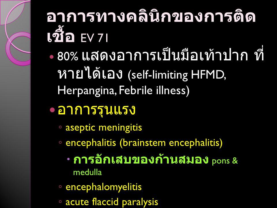 อาการทางคลินิกของการติดเชื้อ EV 71