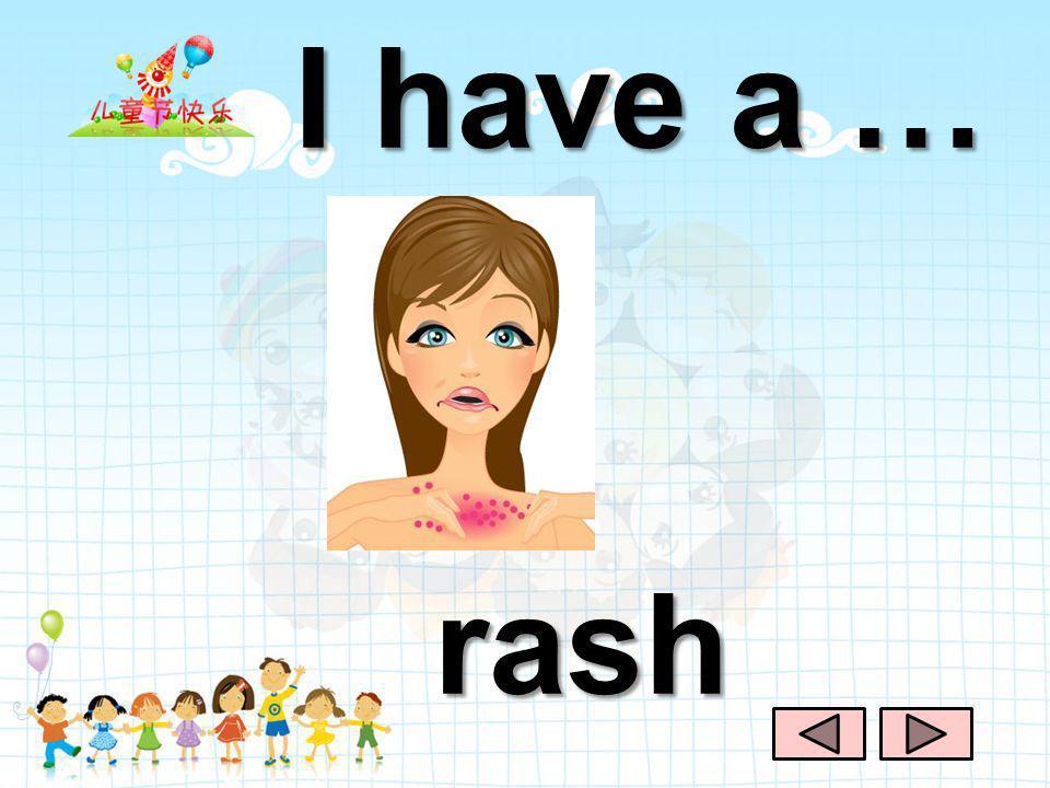 I have a … rash