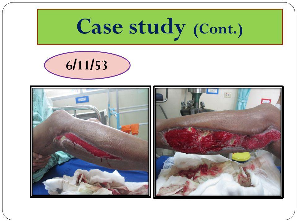 Case study (Cont.) 6/11/53