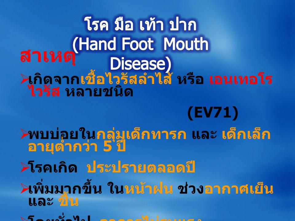 โรค มือ เท้า ปาก (Hand Foot Mouth Disease)