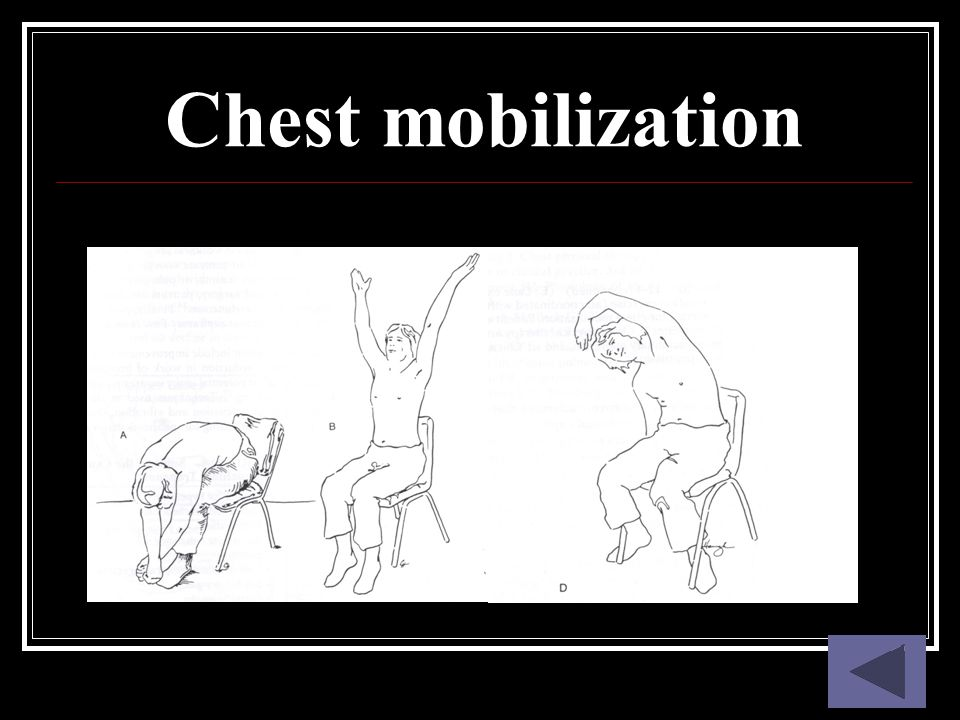 Chest mobilization