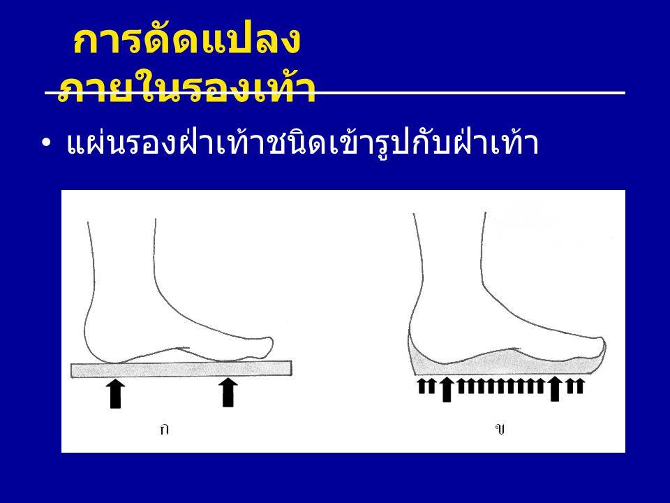 การดัดแปลงภายในรองเท้า