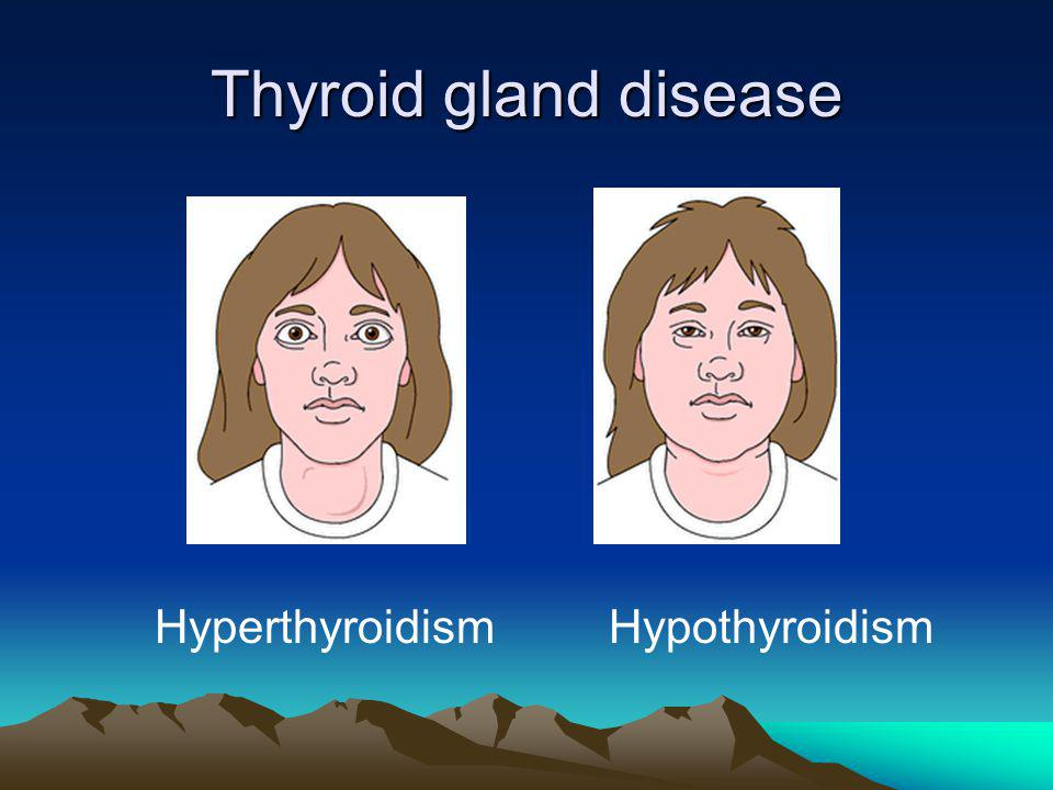 Thyroid gland disease Hyperthyroidism Hypothyroidism