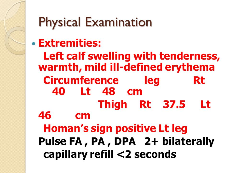 Physical Examination Extremities: