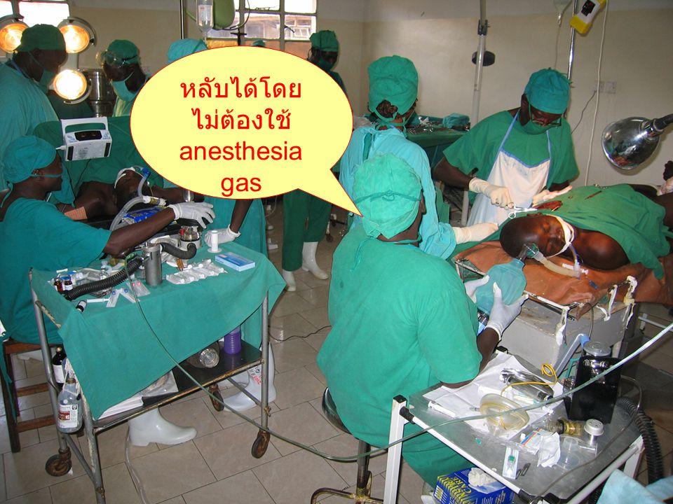 ไม่ต้องใช้ anesthesia gas