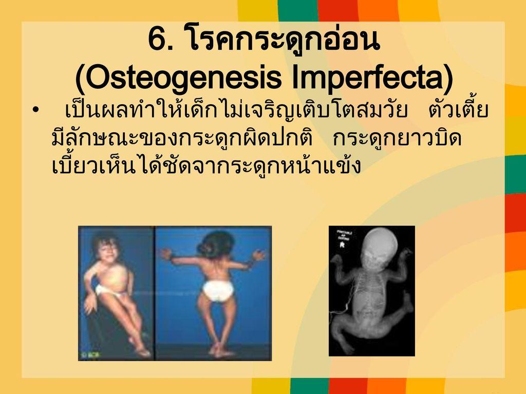 6. โรคกระดูกอ่อน (Osteogenesis Imperfecta)