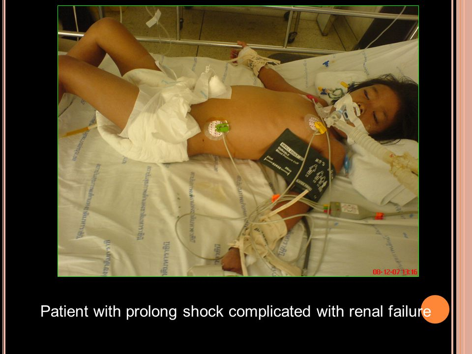Patient with prolong shock complicated with renal failure