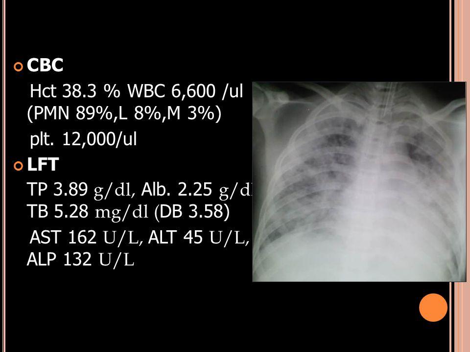 CBC Hct 38.3 % WBC 6,600 /ul (PMN 89%,L 8%,M 3%) plt. 12,000/ul. LFT. TP 3.89 g/dl, Alb. 2.25 g/dl, TB 5.28 mg/dl (DB 3.58)
