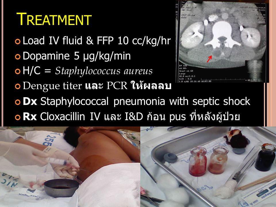 Treatment Load IV fluid & FFP 10 cc/kg/hr Dopamine 5 µg/kg/min