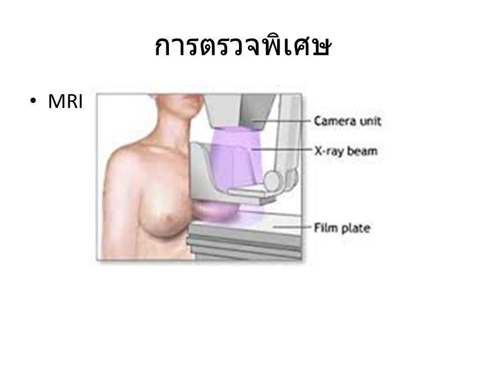การตรวจพิเศษ MRI