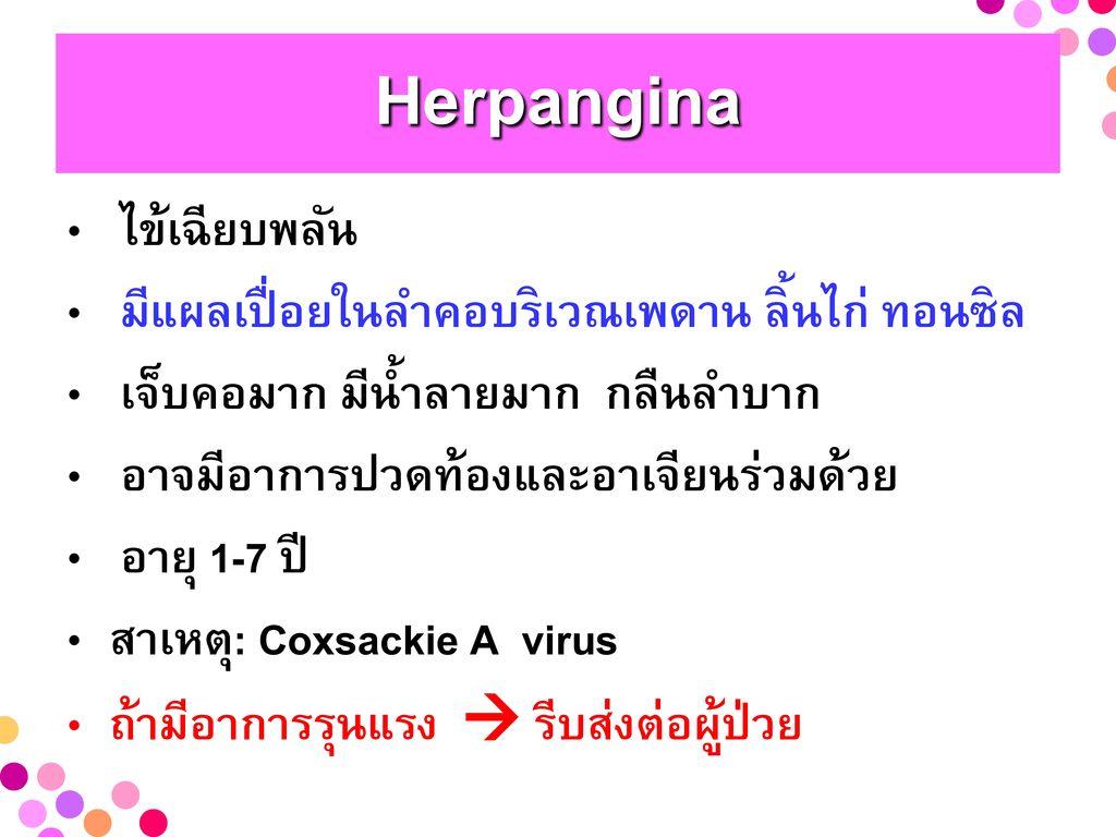 Herpangina ไข้เฉียบพลัน มีแผลเปื่อยในลำคอบริเวณเพดาน ลิ้นไก่ ทอนซิล