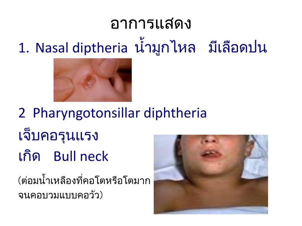 อาการแสดง Nasal diptheria น้ำมูกไหล มีเลือดปน