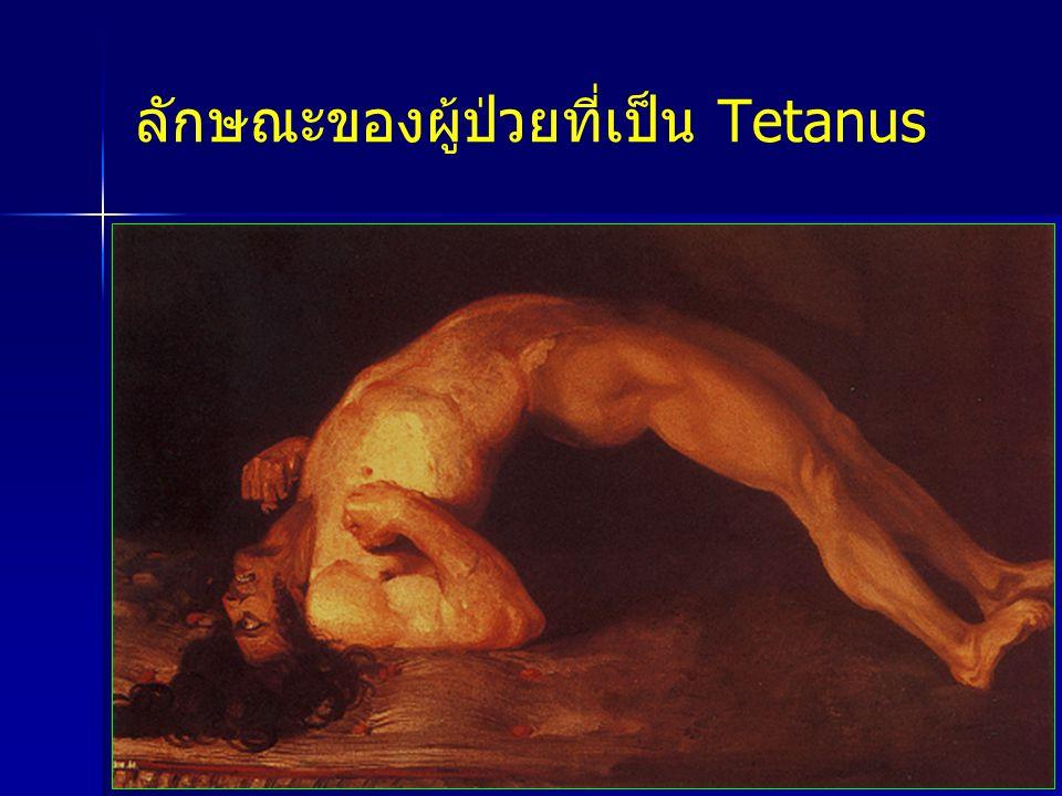 ลักษณะของผู้ป่วยที่เป็น Tetanus