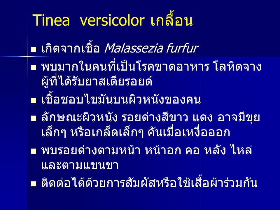 Tinea versicolor เกลื้อน