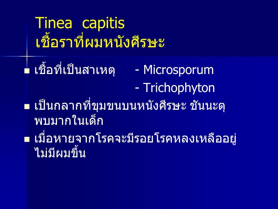 Tinea capitis เชื้อราที่ผมหนังศีรษะ