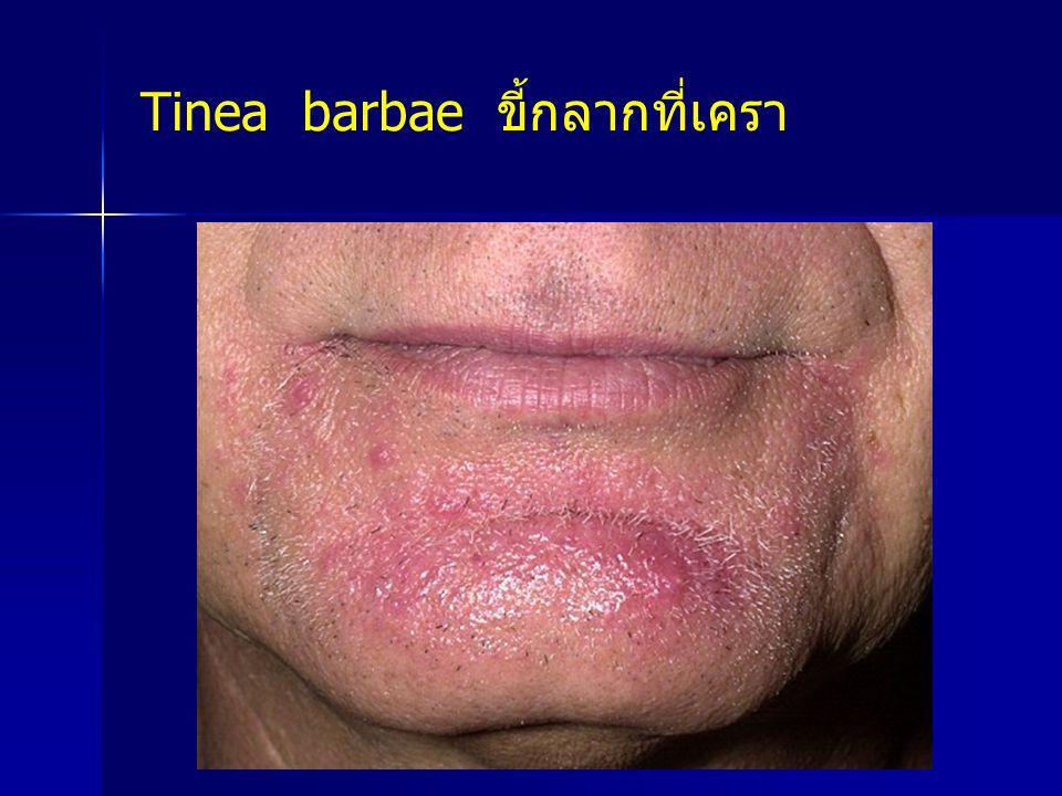 Tinea barbae ขี้กลากที่เครา
