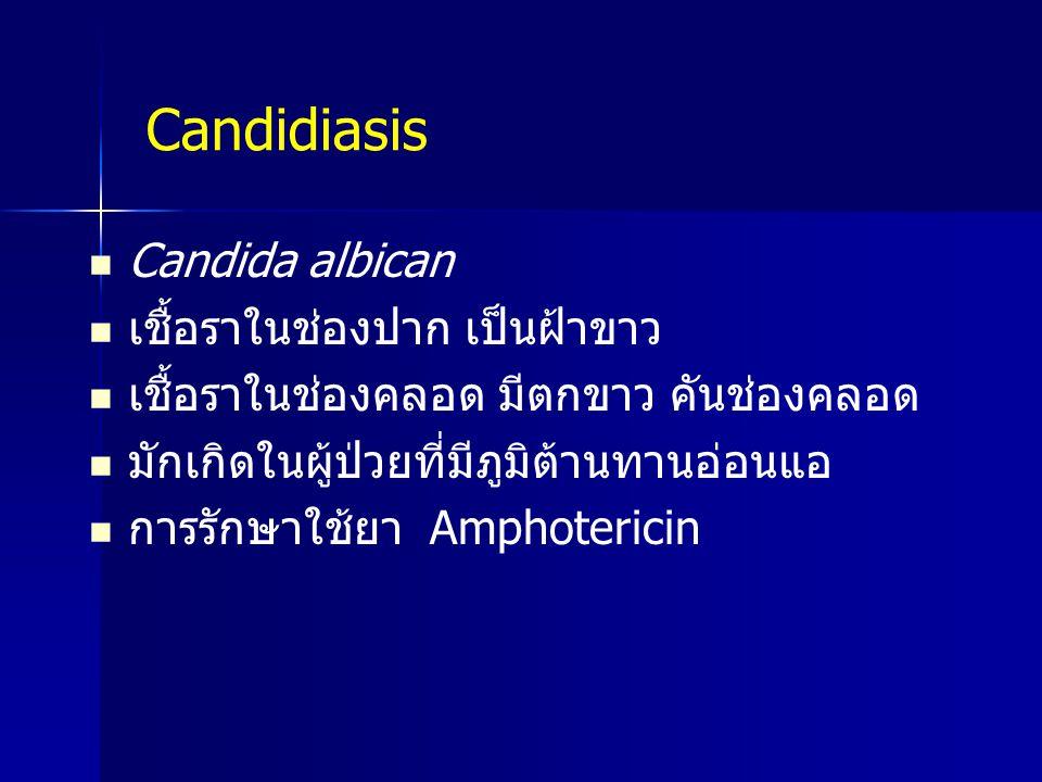 Candidiasis Candida albican เชื้อราในช่องปาก เป็นฝ้าขาว