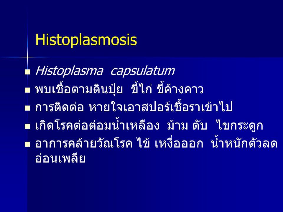 Histoplasmosis Histoplasma capsulatum