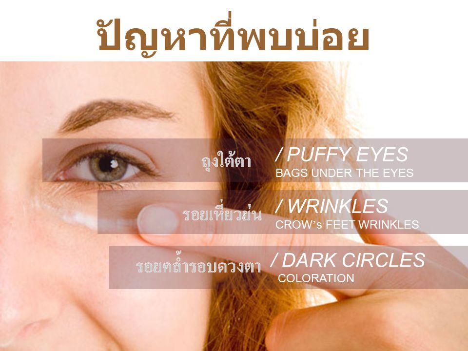 ปัญหาที่พบบ่อย / PUFFY EYES / WRINKLES / DARK CIRCLES