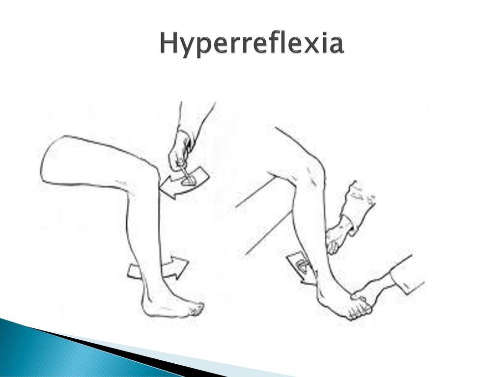Hyperreflexia