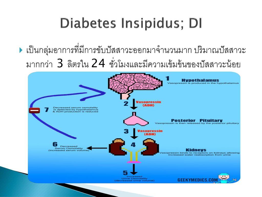 Diabetes Insipidus; DI