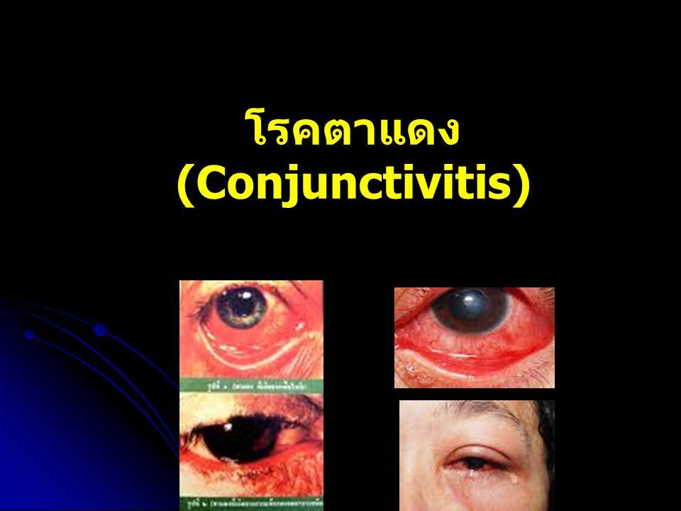 โรคตาแดง (Conjunctivitis)