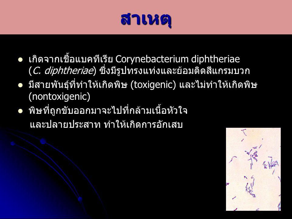 สาเหตุ เกิดจากเชื้อแบคทีเรีย Corynebacterium diphtheriae (C. diphtheriae) ซึ่งมีรูปทรงแท่งและย้อมติดสีแกรมบวก.