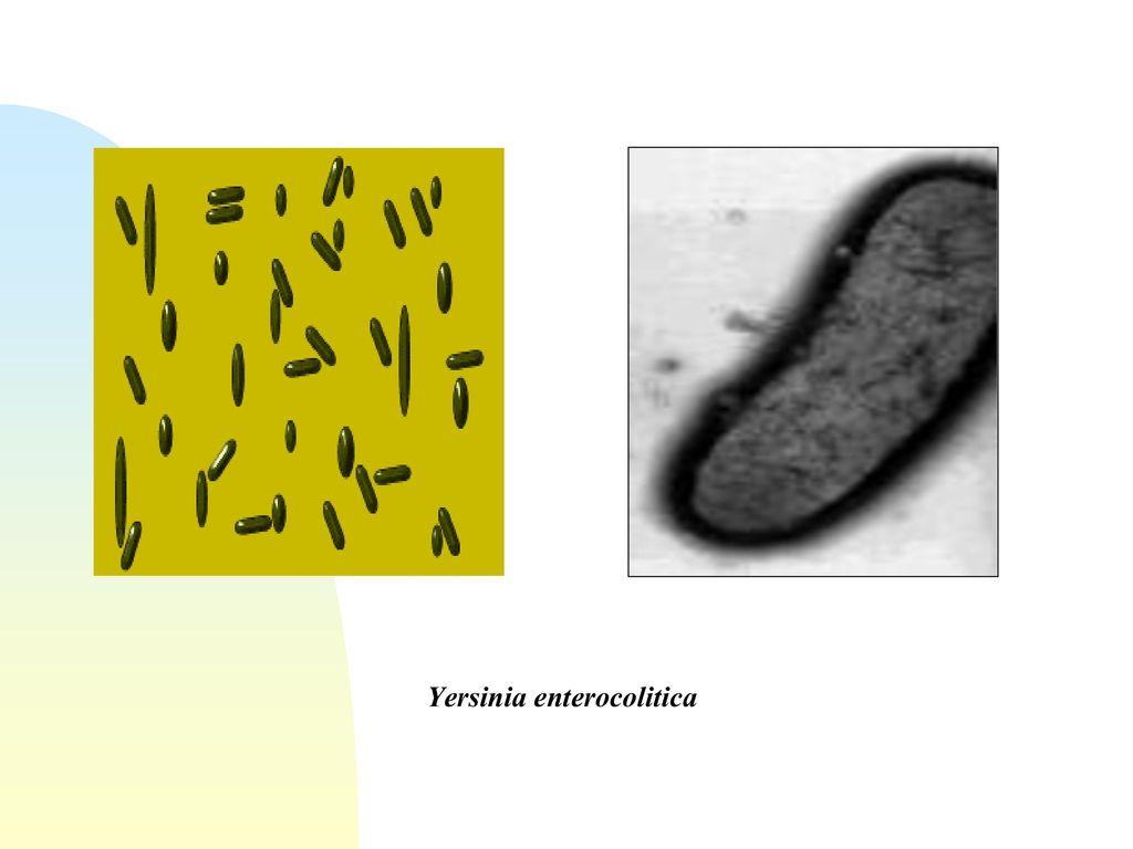 Yersinia enterocolitica