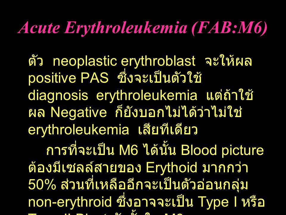 Acute Erythroleukemia (FAB:M6)